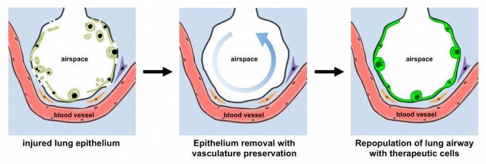 Regenerar los pulmones dañados manteniendo los vasos sanguíneos intactos.