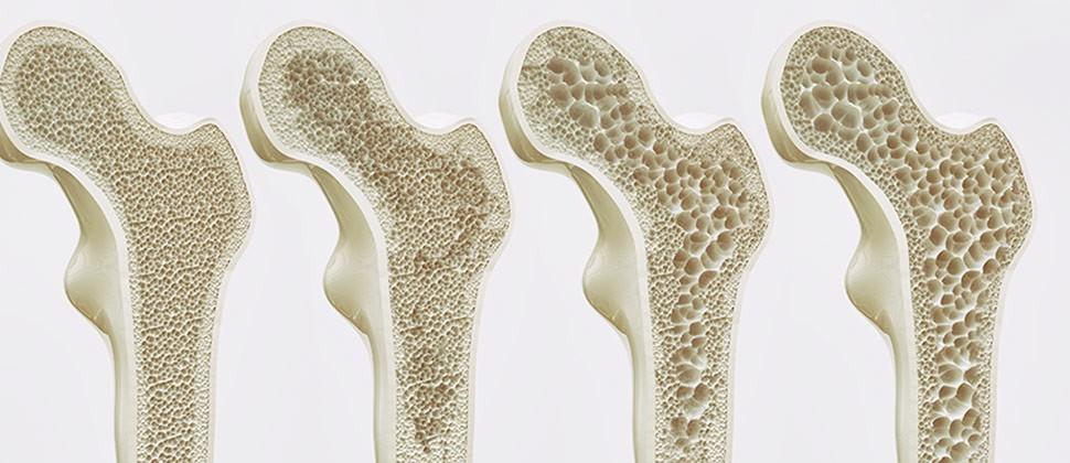 Osteoporosis: la enfermedad metabólica de los huesos.