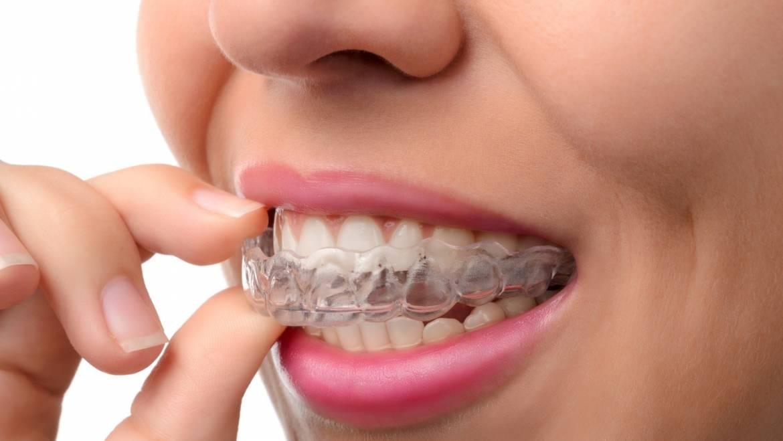 Causas y consecuencias del bruxismo o rechinado de dientes